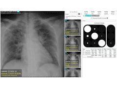 研究表明VisionPro Deep Learning软件能够识别胸部X光片图像中的新型冠状病毒(Covid-19)