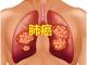 小细胞肺癌(SCLC)新药!默克首创ATR抑制剂berzosertib+拓扑替康概念验证2期研究展现强劲疗效!